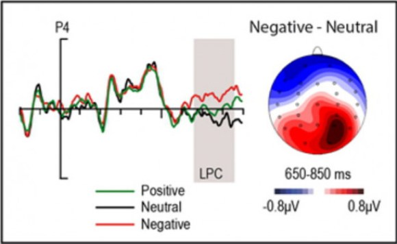 Patrón de actividad eléctrica cerebral característica del procesamiento de estimulos emocionales (EPN) producida por palabras negativas subliminales en comparación con palabras neutras / UCM-ISCIII