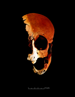 Cráneo del niño. Aparece rota al haber aflorado de la tumba que se había erosionado / Foto cedida por Cedidas por Thierry Dupradou