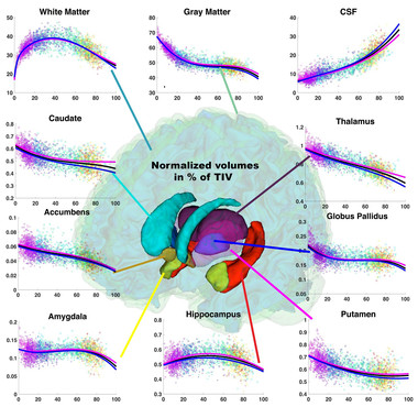 <p>El estudio ha establecido los valores de normalidad de las estructuras cerebrales. / UPV</p>