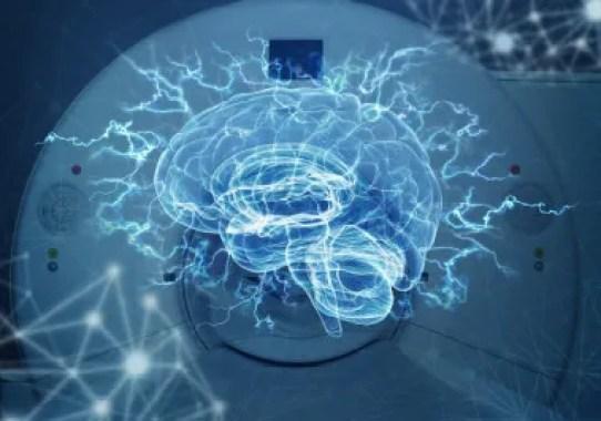 <p>Un equipo de investigadores del proyecto europeoMULTI-LATERALha utilizado resonancias magnéticas para estudiar las áreas cerebrales en vivo y ha refutado una teoría sobre la lateralización del lenguaje. /©Fotolia</p>