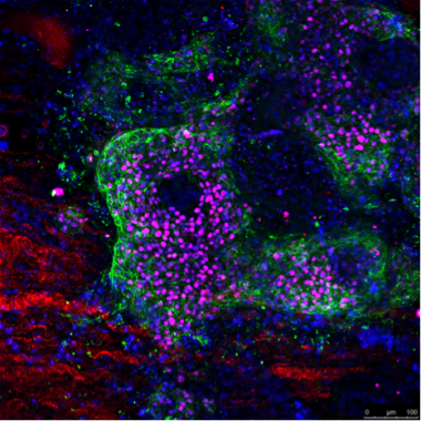 <p>Diferenciación cardíaca de células madre pluripotentes humanas derivadas a cardiomiocitos en la matriz extracelular de un ventrículo descelurarizado. / IBEC</p>