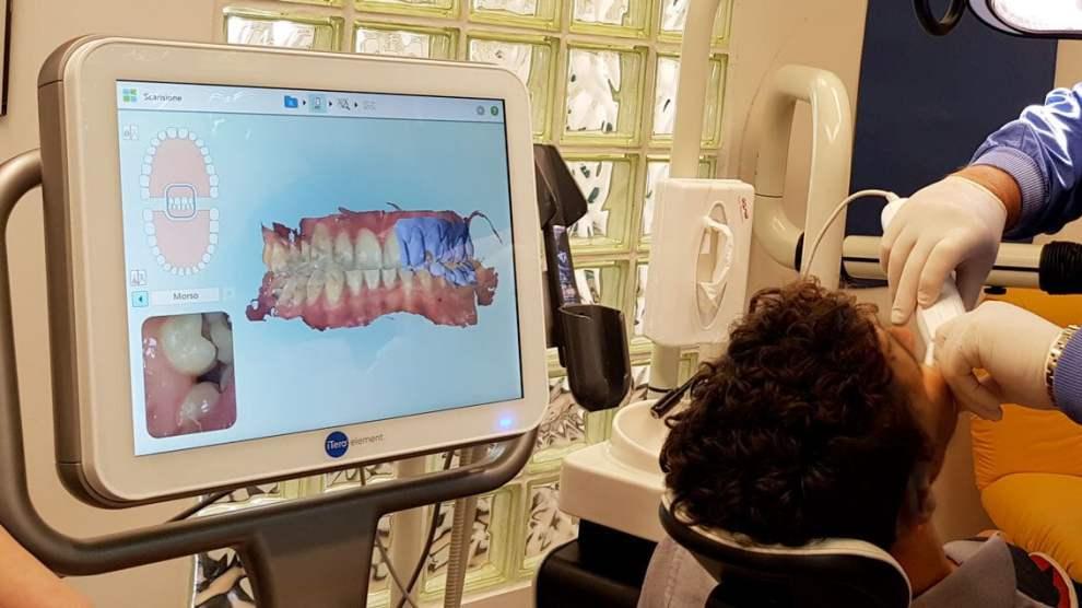 scanner 3d Itero Invisalign