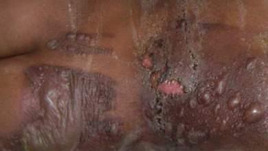 Photo of بعد مكالمتين هاتفيتين لوزير الصحة ووزير الخارجية: حالة استنفار بمستشفى ابن رشد بسبب 7 موريتانيين مصابين بحروق