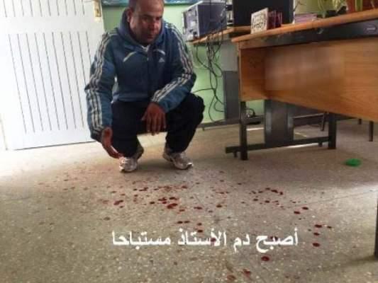 Photo of اعتداء شنيع على استاذ لمادة التربية الاسلامية بالثانوية الاعدادية الفارابي بالكبداني
