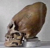 Apparent skull of alien-human hybrid