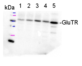 Anti-GluTR | glutamyl -tRNA reductase antibodies