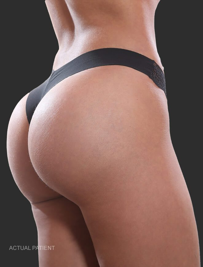 brazilian butt lift el paso tx