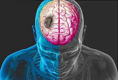 stroke sumbatan iskemik dan stroke pendarahan hemmoragik