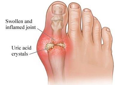 Gout Arthritis atau Asam Urat