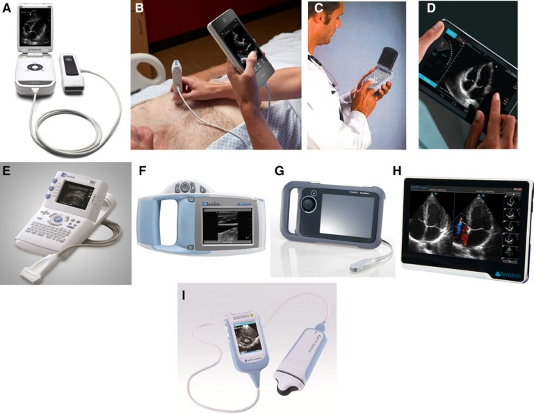 Handheld Echocardiography | Circulation