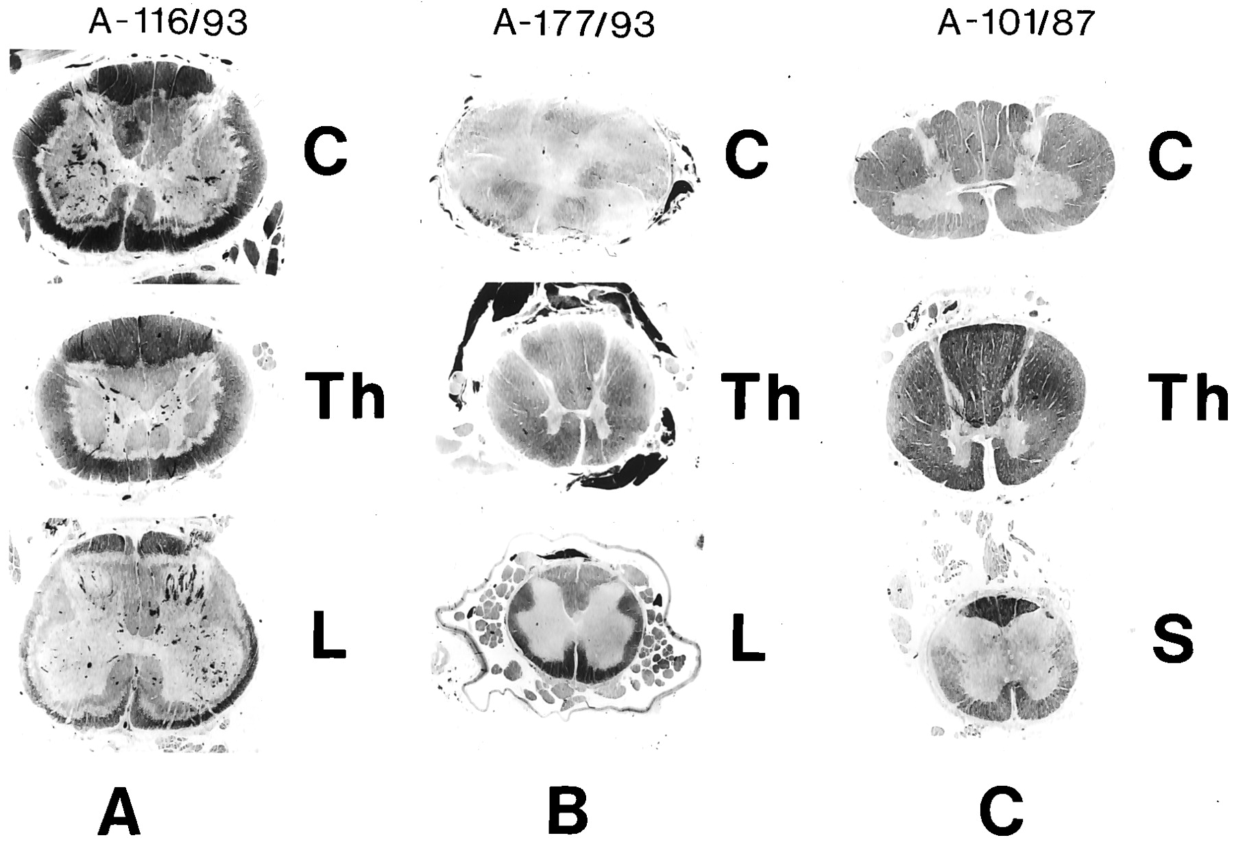 Selective Vulnerability Of The Lumbosacral Spinal Cord