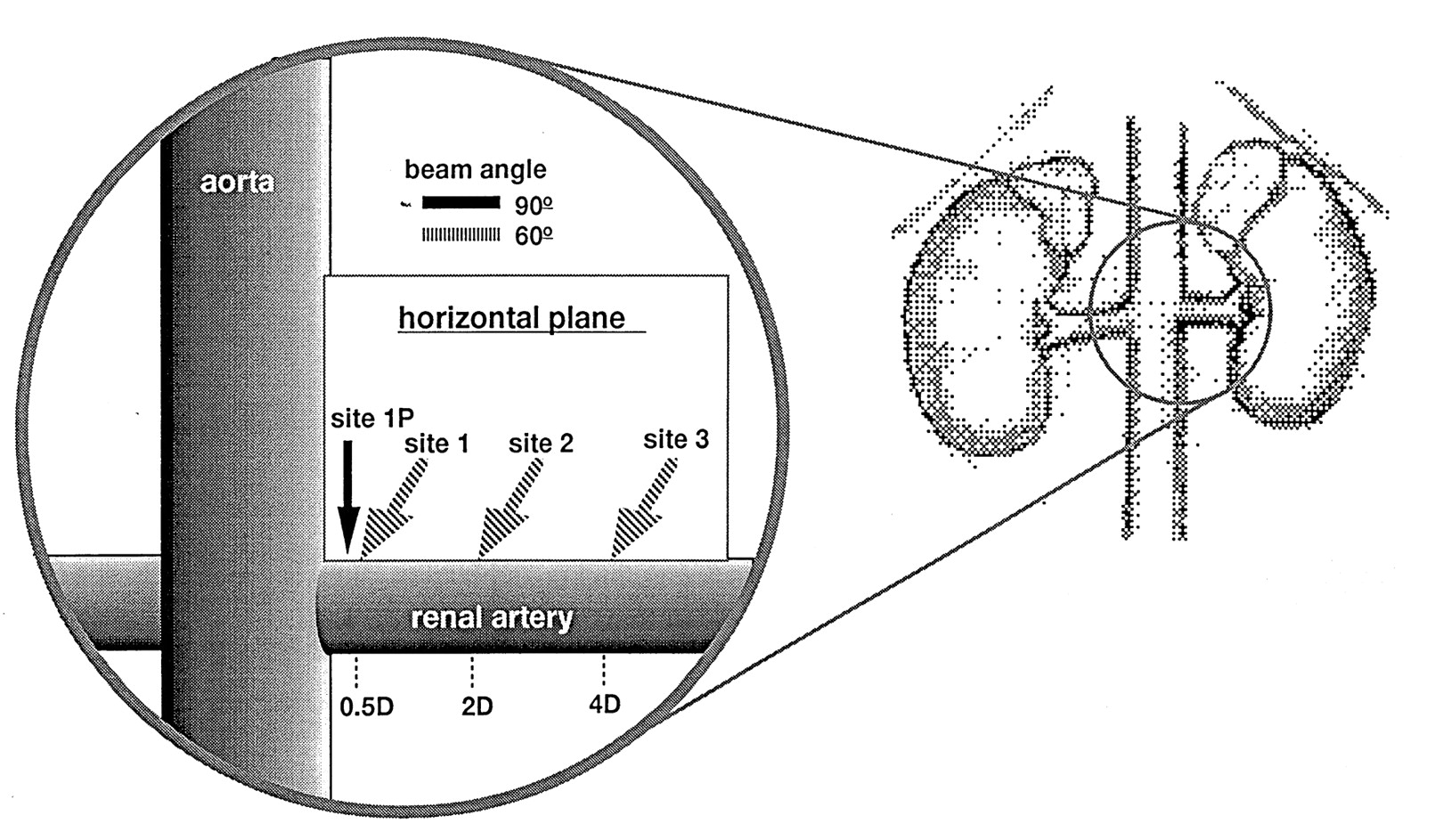 Blood Velocity Profiles In The Human Renal Artery By