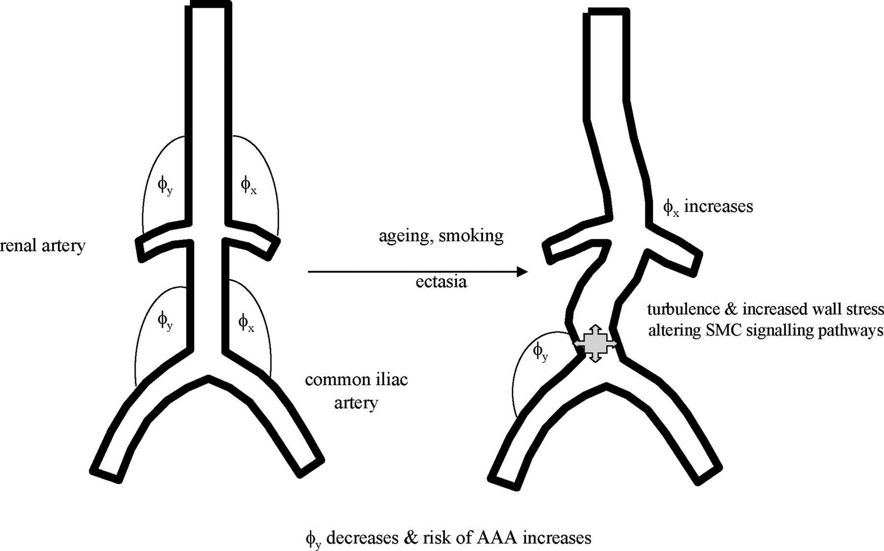 Site Specificity Of Aneurysmal Disease