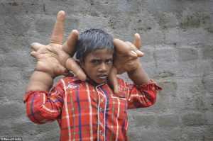 طفل-ذو-اعاقة في الهند