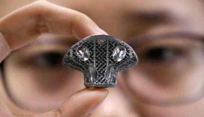 نجاح زرع فقرة اصطناعية 3D في العمود الفقري
