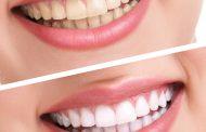 التخلص من جير الأسنان المتراكم بخلطة منزلية سهلة و بسيطة