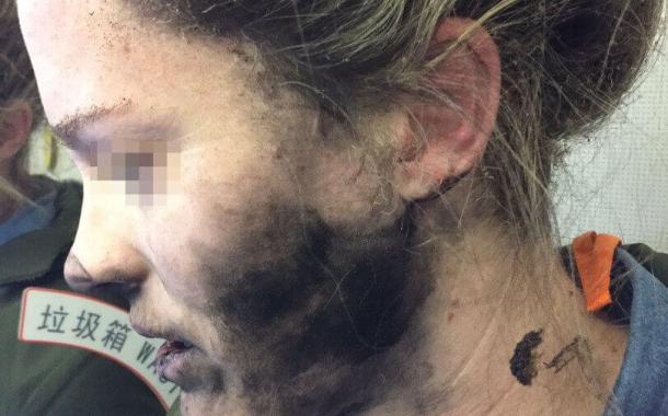 آبل تصدم الجميع بعد رفض التعويض للفتاة  اثر حادثة انفجار سماعة الرأس