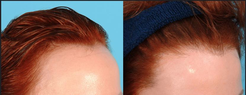 تصغير الجبهة من خلال زراعة الشعر المباشرة DHI