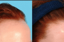 نصائح تطويل الشعر بسرعة حقيقية مع طرق صحية 100% بعيداً عن الخلطات الفاشلة