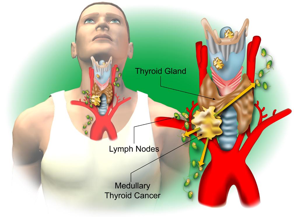 Thyroid r