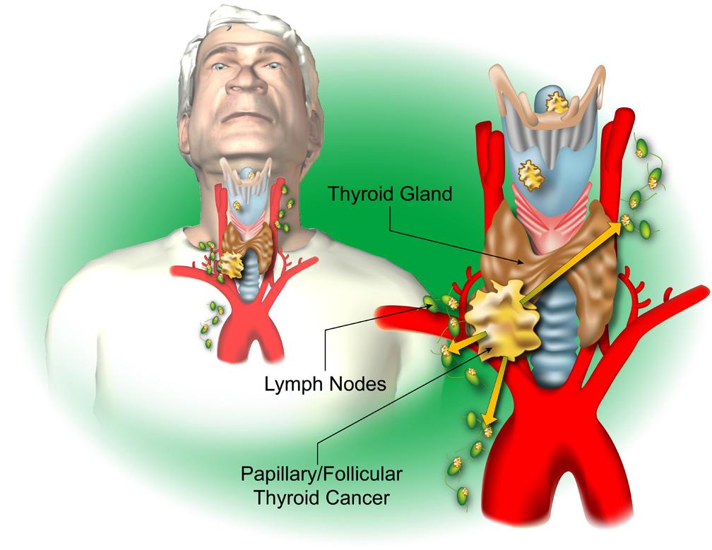 Thyroid b