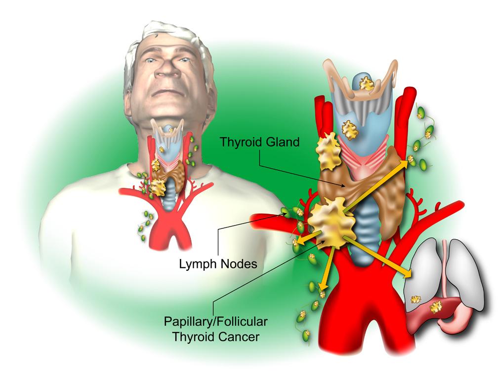Thyroid c