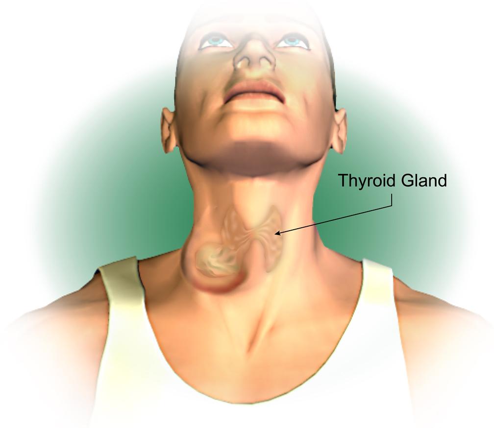The main symptom of thyroid cancer