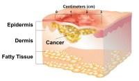 Understanding Non-Melanoma Skin Cancer