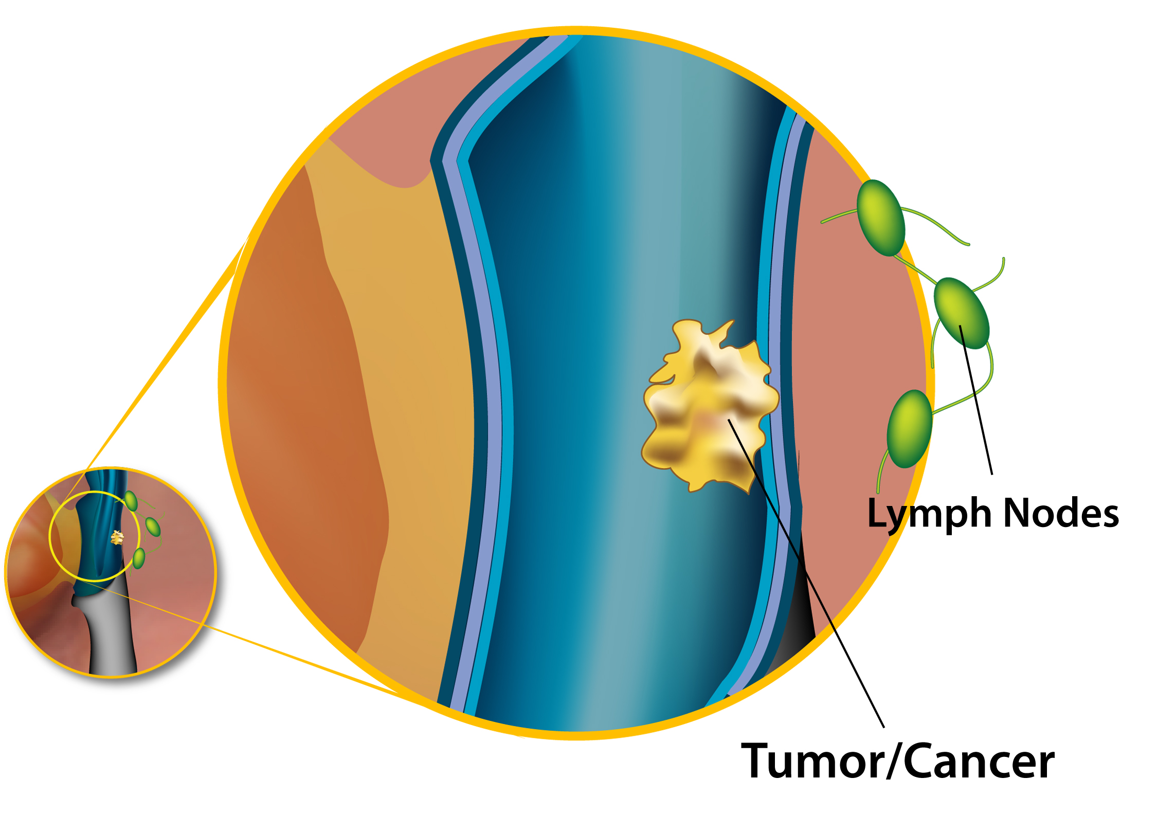 Staging of Head and Neck Cancer - American Head   Neck Society 705718c15