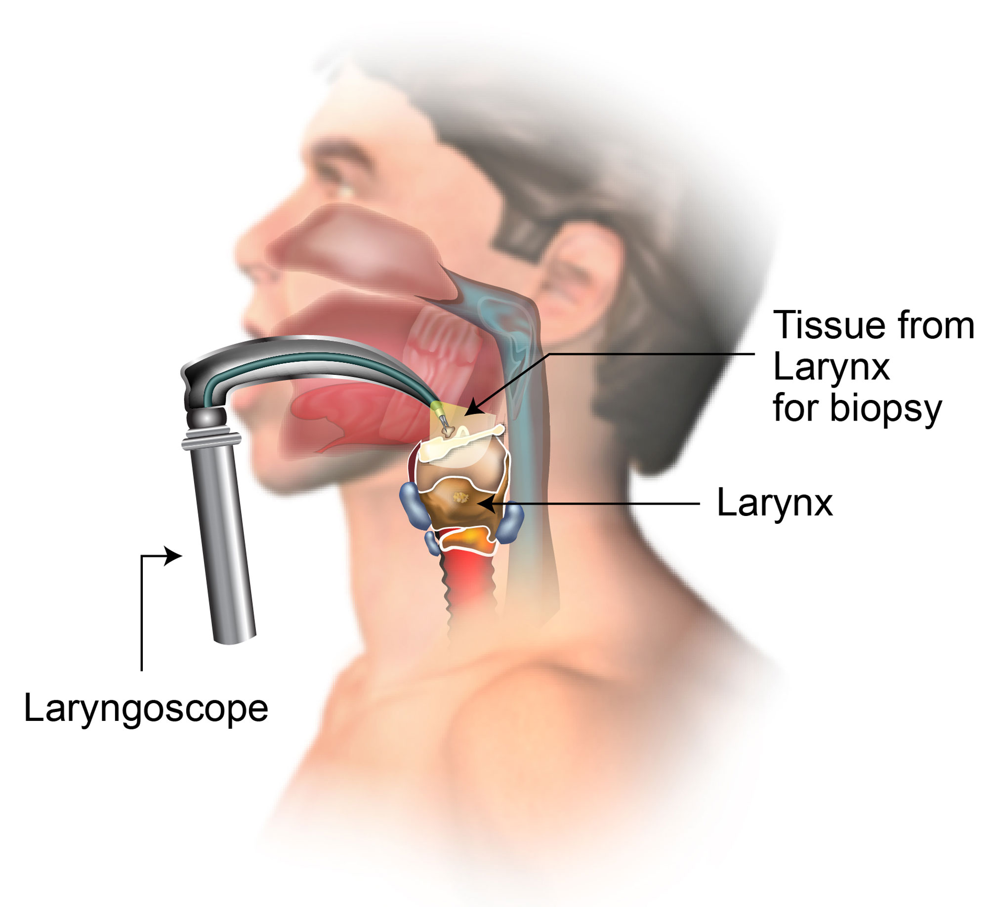 Endoscopic Biopsy