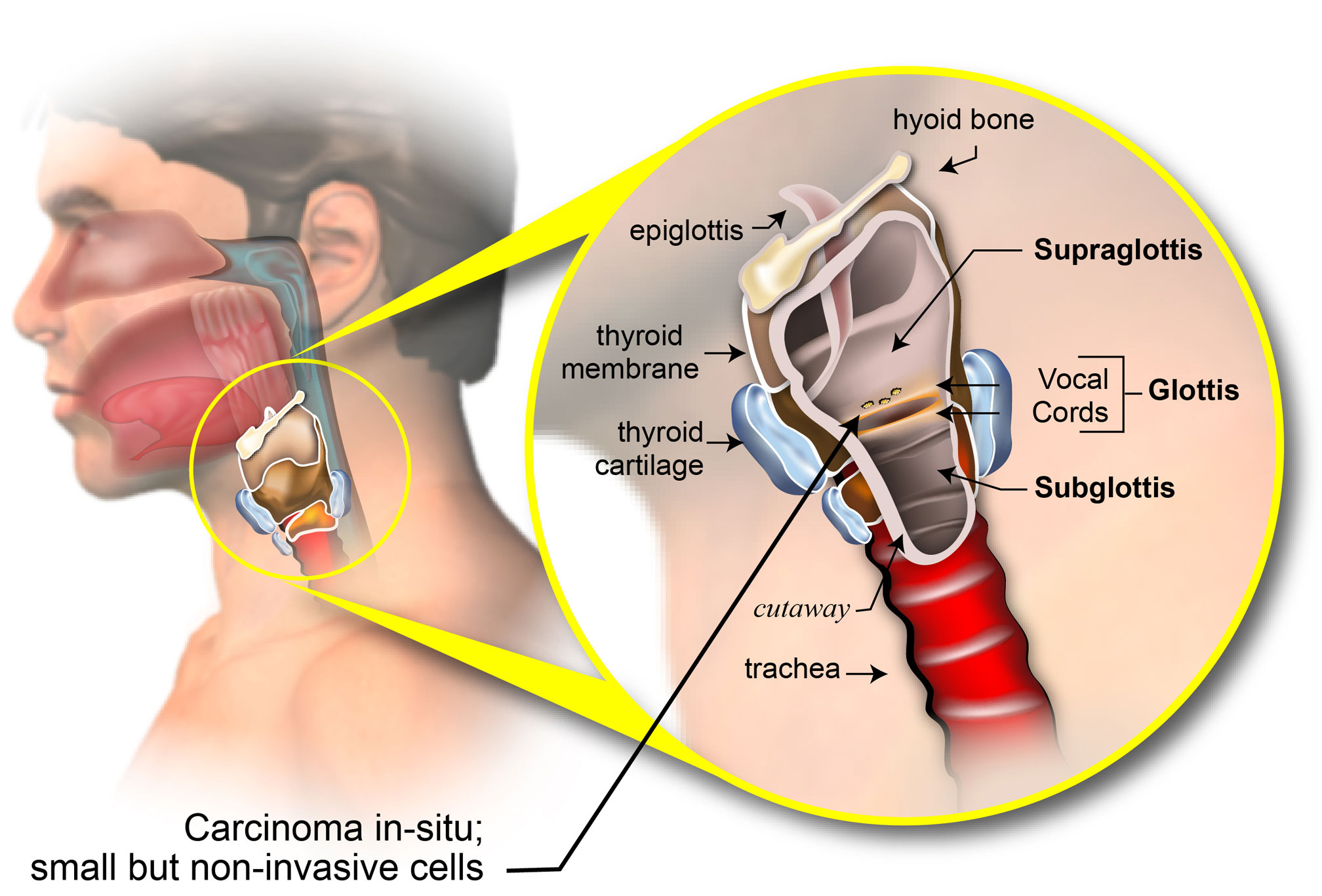 Staging Of Laryngeal Cancer American Head Neck Society