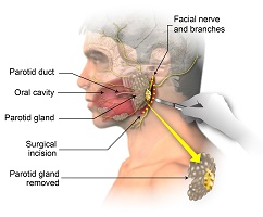 Surgical Biopsy