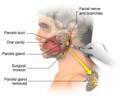 Parotidectomy