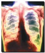 tuberculosis_01