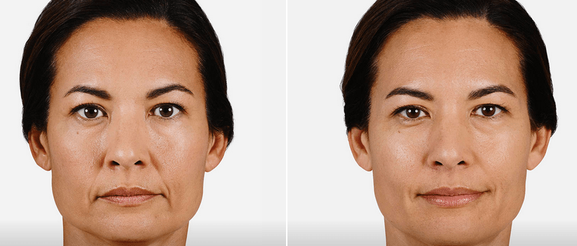 Juvaderm Ultra facial fillers in Arlington Heights IL