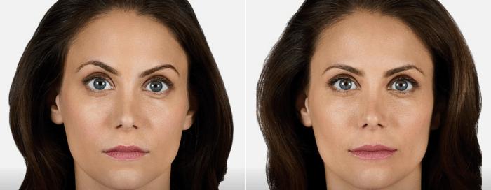Juvederm Volbella Facial Fillers in Arlingtn Heights IL