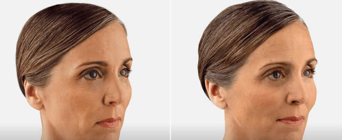 Facial Fillers to remove wrinkles in Arlington Heights IL