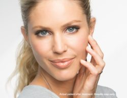 facial rejuvenation in Arlington Heights IL with Dr. Engelberg