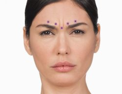 Botox for frown lines in Arlington Heights, IL