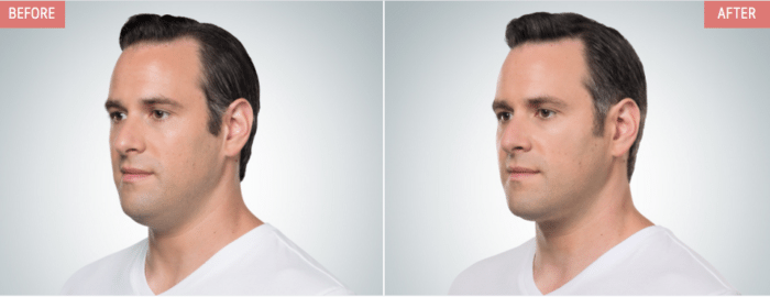 Kybella chin and neck treatment in Arlington Heights IL