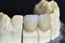 CEREC Same Day Dental Crowns in Arlington Heights IL