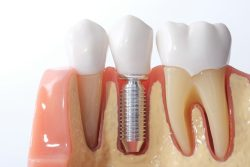 Replacing dental implants in Arlington Heights IL