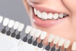 Is teeth whitening right for you Arlington heights il