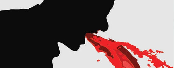 Ilustrasi Hematemesis sebagai Ciri Ciri Demam Berdarah