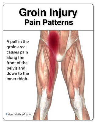Groin Pull: Sports Injuries
