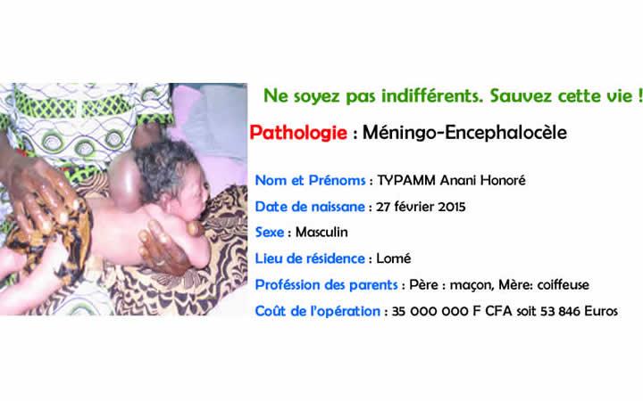 TYPAMM Anani Honoré (Meningo-encephalocele)