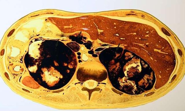 اكتشاف عضو جديد في جسم الإنسان .. له وظيفة هامة جدا