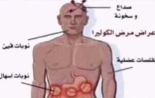 أعراض وطرق إنتشار وعلاج وباء (الكوليرا ) القاتل !