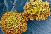 بكتيريا مبرمجة لتدمير الخلايا السرطانية!
