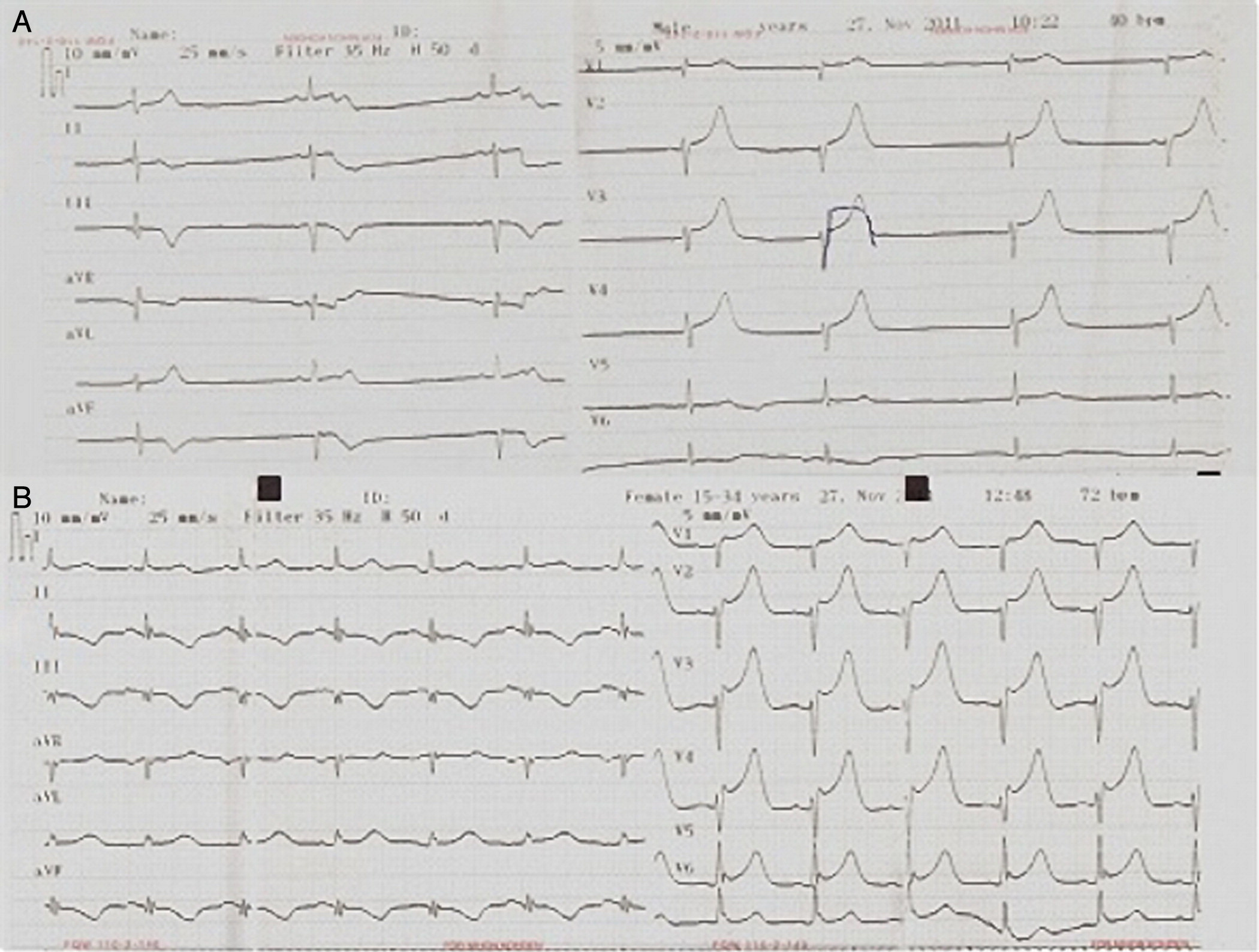 Intracranial Hemorrhage With Electrocardiographic